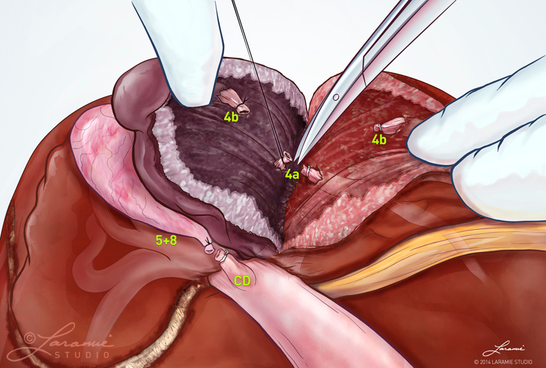 Liver Resection Surgical Procedure (Lobes 4, 5 + 8)