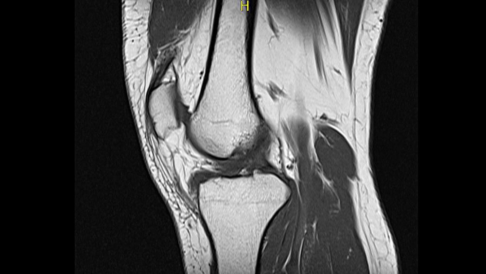 knee2