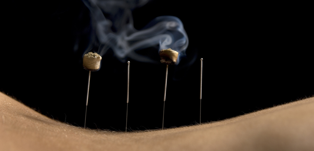 Moxibustion Q Amp D Acupuncture And Herb Clinic
