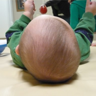 examining baby head shape flat head syndrome