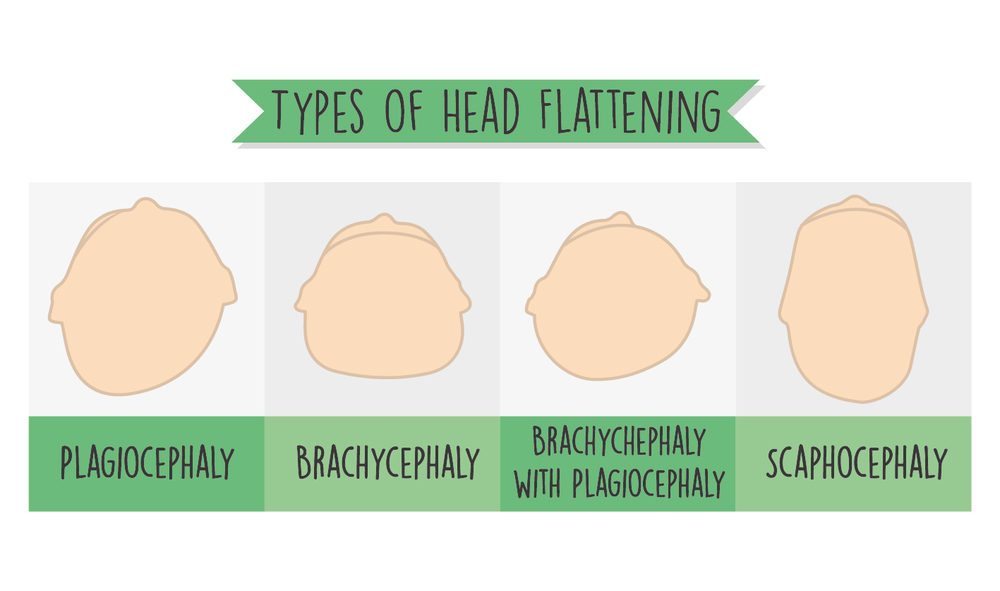 Types of head flattening in babies. CanDoKiddo.com