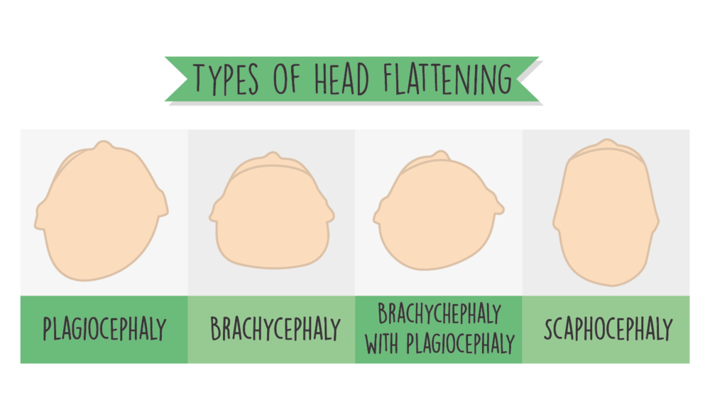 types of head flattening in babies