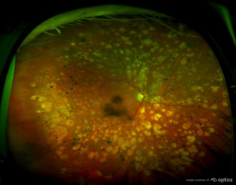 Post Laser Treatment for Severe Diabetic Retinopathy