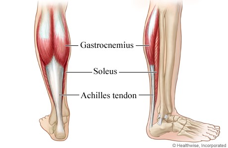 ACHILLES TENDON STRAIN