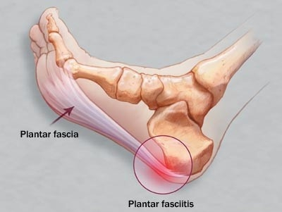 FOOT PAIN: PLANTAR FASCIITIS