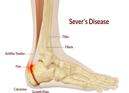 HEEL PAIN: SEVERS DISEASE