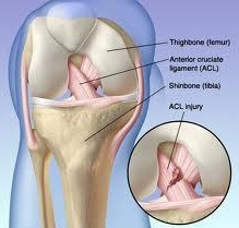 ACL INJURY (KNEE)