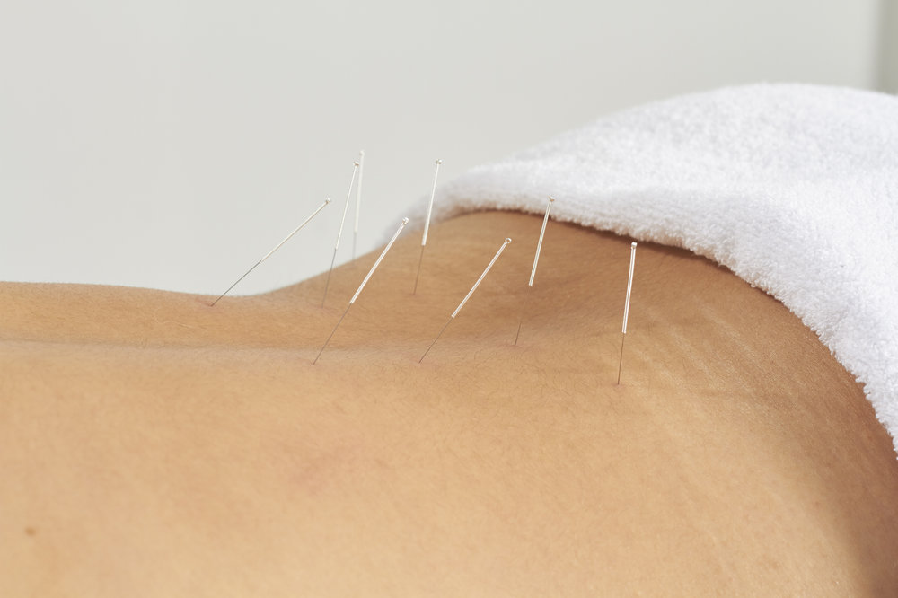 Acupuncture -