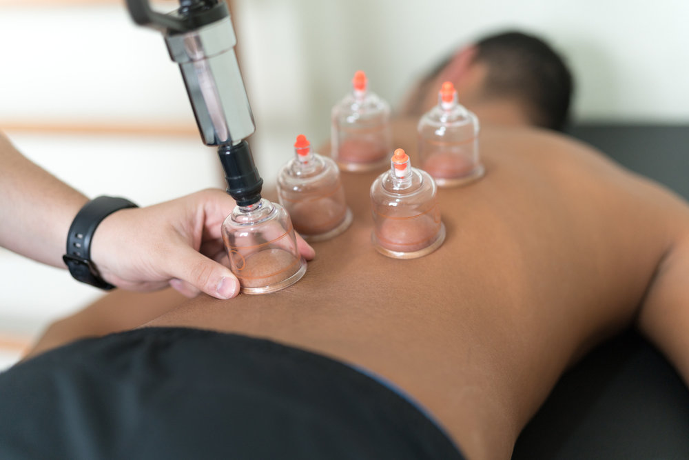 Cupping Therapy -