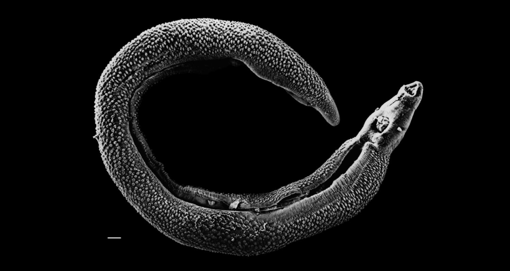 An electron micrograph of a Schistosoma parasite (Source: Wikipedia)