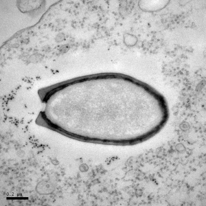 Pandoravirus infecting an amobea. ( Jean-Michel Claverie and Chantal Abergel)