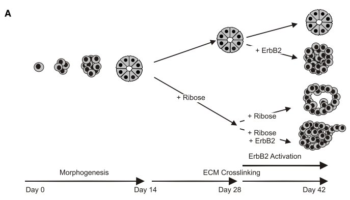 Matrix stiffness leads to cancer progression. ErbB2 is a growth factor receptor that is amplified in many breast cancers. In this experiment ribose treatment leads to ECM stiffening. Either GFR amplification or ECM stiffening breaks down the organization of acinii, but both are required for metastatic outgrowth. Taken from reference 3.