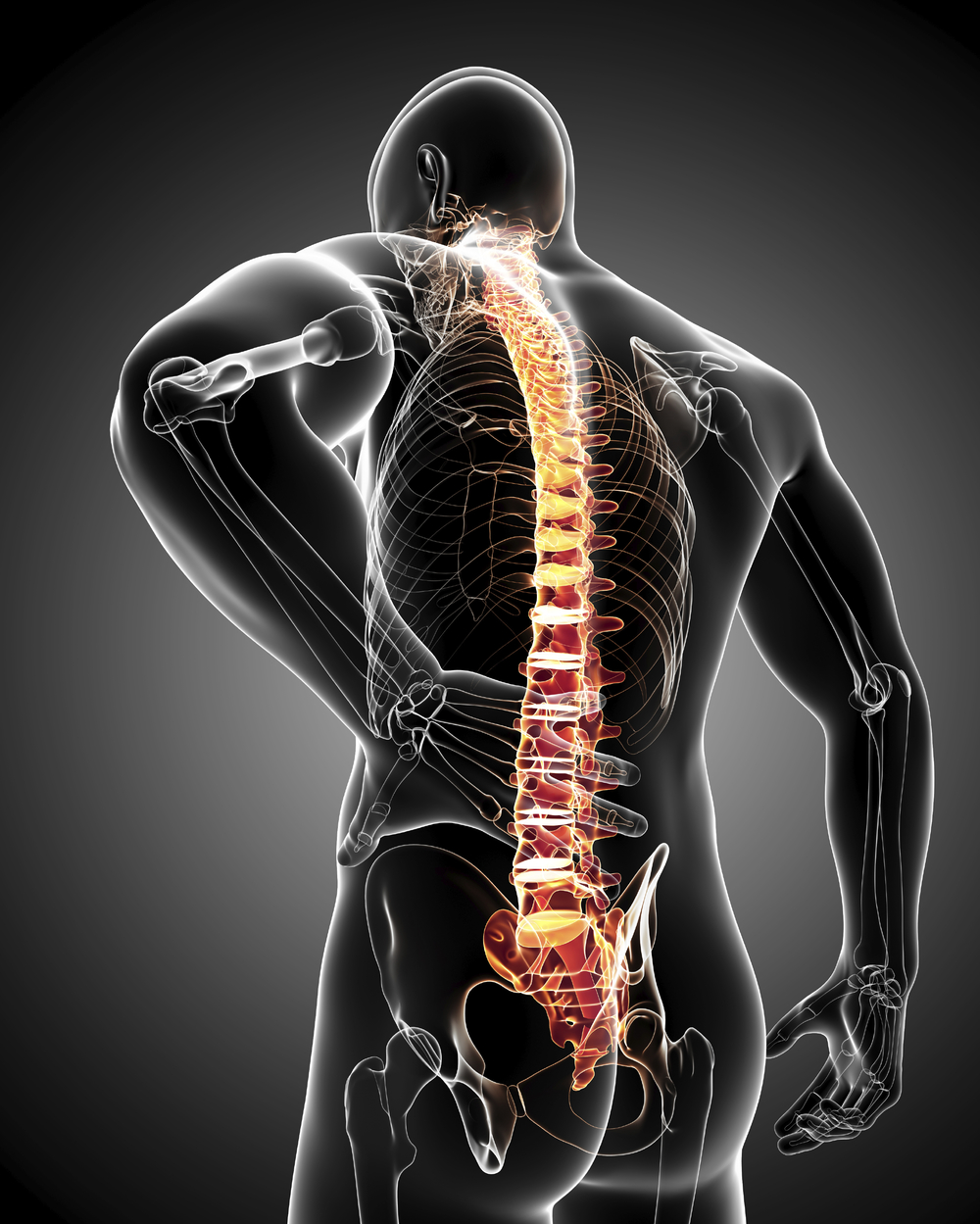A Spinal Xray will help identify any issues with the spine other related ailments.