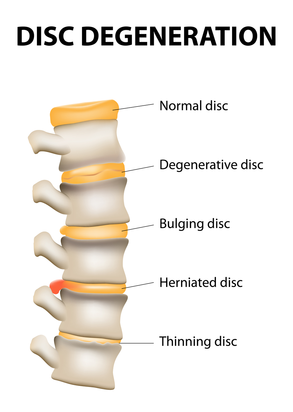 Spinal discs are subject to many types of damage.