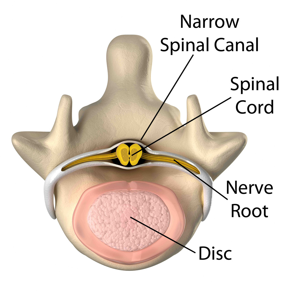 spinal-cord.jpg
