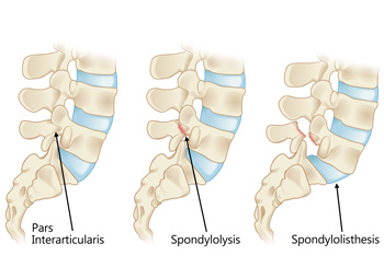 Side view of spine and Par Interarticularis. Stress fractures indicated by Spondylolysis and Spondyloslisthesis.