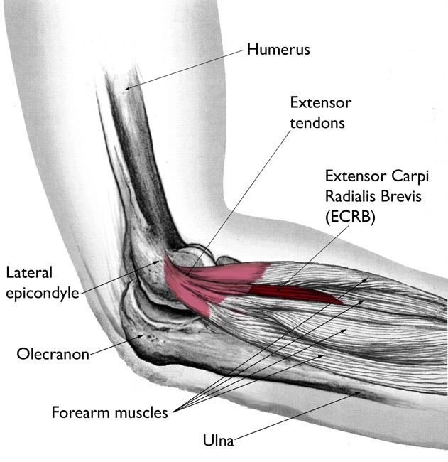 https://orthoinfo.aaos.org/en/diseases--conditions/tennis-elbow-lateral-epicondylitis/
