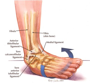 Rolling the foot inwards is a common way of spraining ligaments on the outside of the ankle