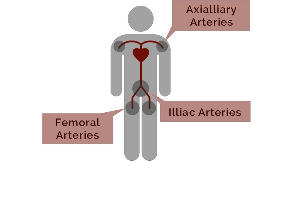 Common Regions of Injury