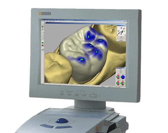 A CEREC 3D image