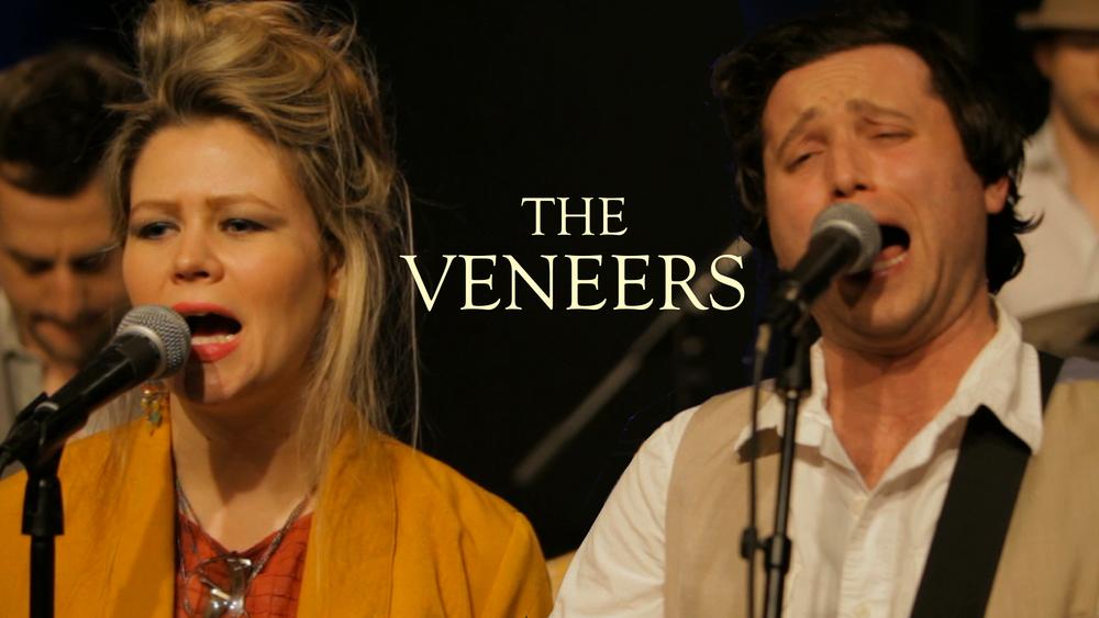 Veneers Edited.jpg