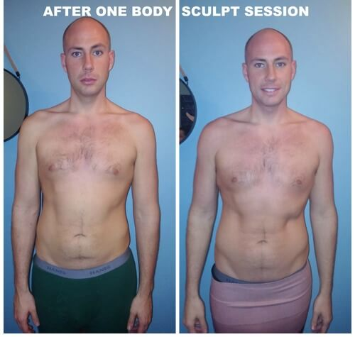 Body Sculpting, Before and After, Spa Remedy