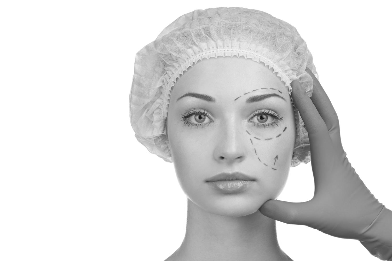 Asian Eyelid Surgery — San Francisco Bay Area Oculofacial Plastic ...