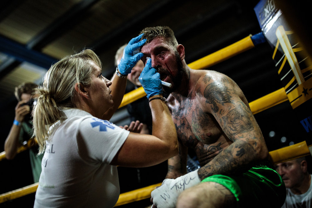 MANCHESTER, ENGLAND: Jay 'BamBam' Eggleston, 35 from Sheffield is treated by medical staff during an Ultimate Bare Knuckle Boxing (UBKB) fight at Bowlers Exhibition Centre on August 4, 2018.