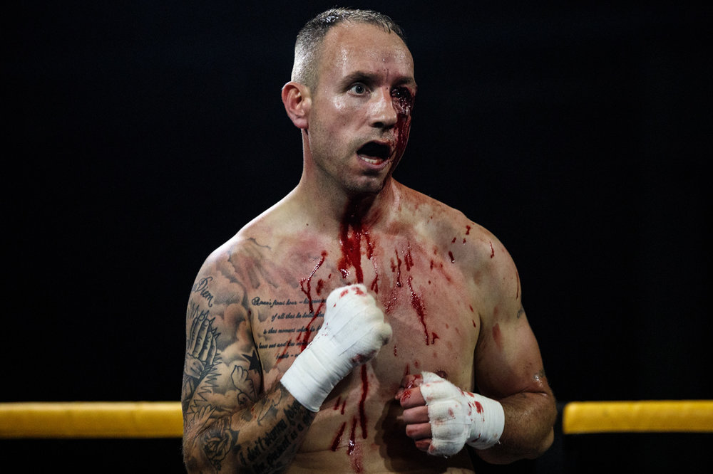 MANCHESTER, ENGLAND: Paul Stredder, 35 from the Wirral looks on bloodied as he fights Brandon Harden, 21 from Edlington during an Ultimate Bare Knuckle Boxing (UBKB) event at Bowlers Exhibition Centre on August 4, 2018.
