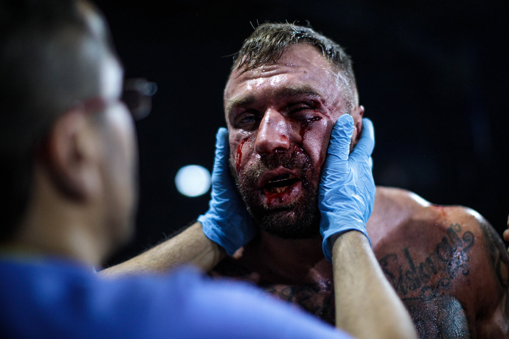 MANCHESTER, ENGLAND: Two-time World Bare-Knuckle Boxing Champion Luke Atkin, age 30 from York, is inspected by medical staff after his fight with Dom Clark during the title fight at an Ultimate Bare Knuckle Boxing (UBKB) event at Bowlers Exhibition Centre on August 4, 2018.