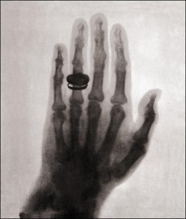 FRAU ROENTGEN'S HAND