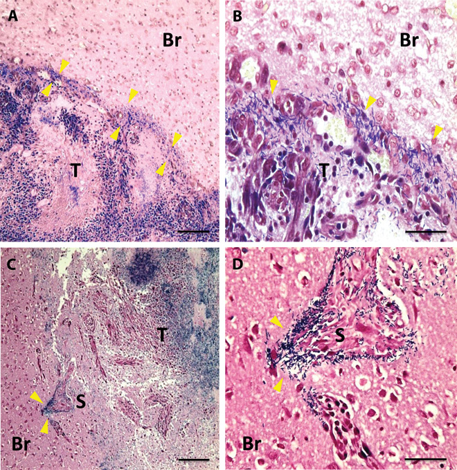A gram stain of    C. novyi  –NT bacteria (yellow arrowheads) localized in tumor (T) and stellate microinvasion. (  A  ) Interface of tumor and normal brain (  B  ) Interface of tumor and normal brain; scale bar  (  C  ) Interface of normal brain, tumor, and stellate microinvasion of neoplastic tissue (  D  )  C. novyi  –NT germination evident in stellate microinvasive lesion. Photo credit Roberts, et. al.   Intratumoral injection of Clostridium novyi-NT spores induces antitumor responses.