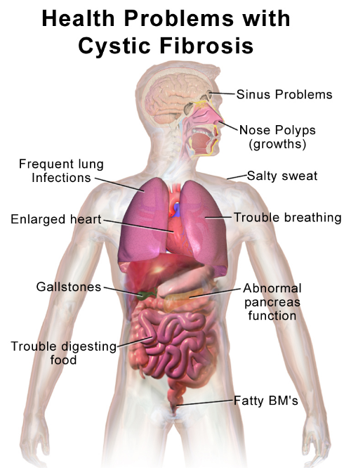 Cystic Fibrosis causes a wide range of health problems.Photo credit:BruceBlaus, Wikimedia Commons.
