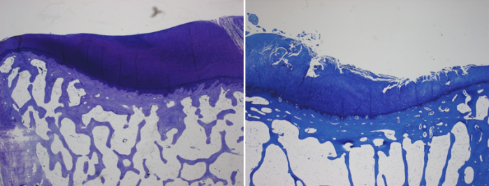 Left: Normal cartilage and subchondral bone.Right: Osteoarthritis causes cartilage degradation and subchondral bone thickening.Photos courtesy of Dr. Richard Loeser.