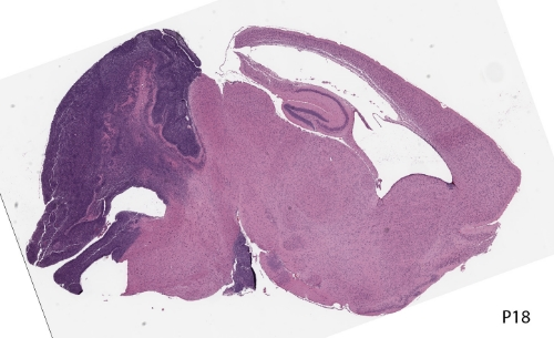 Medulloblastomas (dark purple) in an 18 day old mouse brain. Image courtesy of Gershon Lab.