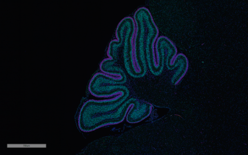 Mouse cerebellum stained with PCNA to show proliferating cells (purple) and p27 for differentiating cells (green) at height of cerebellar proliferation stage, 7 days old, in a normally developing mouse. Image courtesy of Gershon Lab.