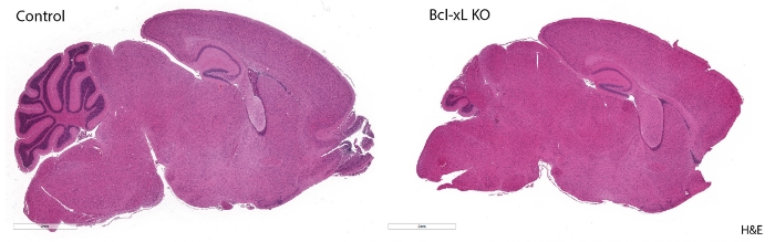 Brain sections of mice at developmental age, 20 days old. Cerebellum with deleted Bcl-xL gene sequence (right) shows increase apoptosis; control mouse with Bcl-xL intact (left). Image courtesy of Gershon Lab.