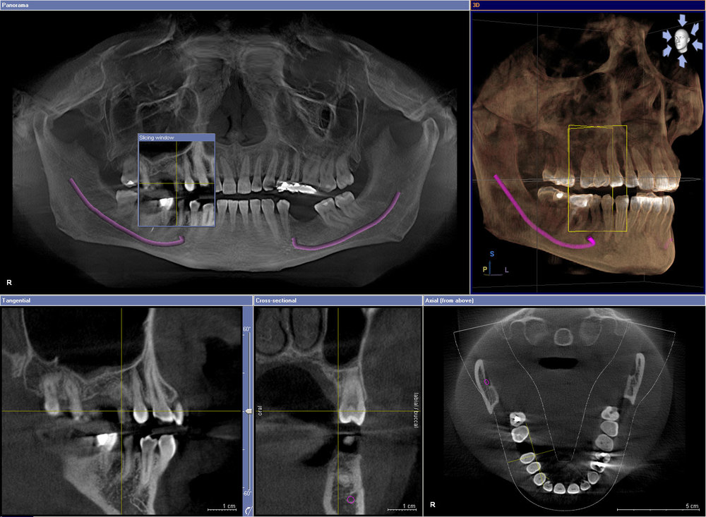 Milford  Implant procedures
