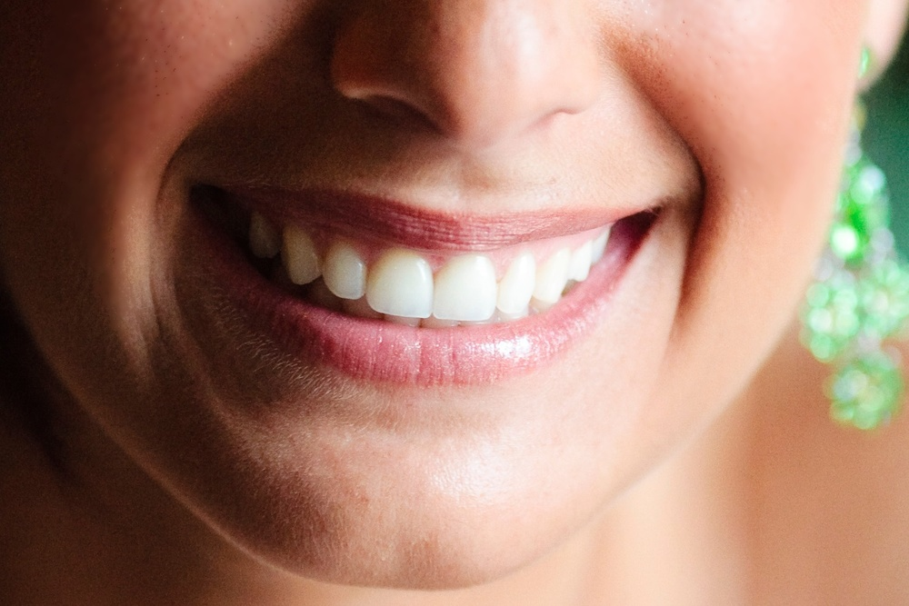Milford Periodontal plastic surgery