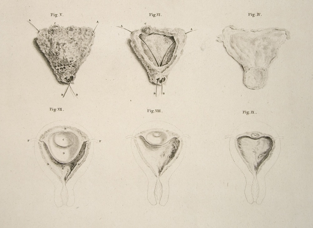 "Six so-called ""conceptions,"" still invisible to the eye, organized as though they were the same conception.  They are arranged in reverse order, retreating towards the moment of generation.  Hunter,  Anatomy , 34.4-9.  Image courtesy University of California, Los Angeles."