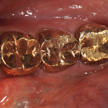 gold-dental-crowns.jpg