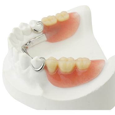 removable-partial-dentures-2.jpg