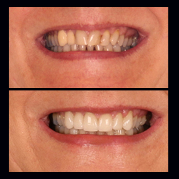 before-after-benefits-of-lithium-disilicate.jpg