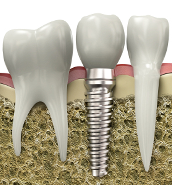 dental-implant-placed-into-the-jaw-bone.jpg