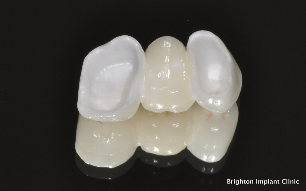ZIRCONIA - Also known as zirconium, zirconia is regarded as the strongest and hardest material in dentistry. Cubic zirconia, which we use, is a cubic crystalline form of zirconium dioxide. The advanced bio-compatible material has no optical flaws and is typically colorless. It can also be made in a variety of colors, albeit limited.Zirconia boasts highly impressive durability. And the absence of dark metals means that our technicians can easily develop prosthetics with properties of a natural tooth, including light reflection.