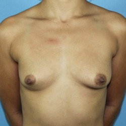 Before-Breast-Front1-250x2501.jpg