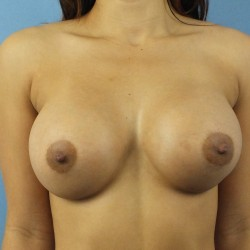 4-Mo-Afte-Breast-Front1-250x2501.jpg