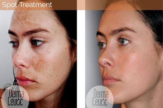 Melasma Treatment with Milk Peel