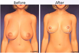 before and after breast reduction plastic surgeon, connecticut fairfield, westport, wilton, weston, easton, stamford, milford, trumbull, monroe, shelton, stratford, new cannan, darien, new haven ct