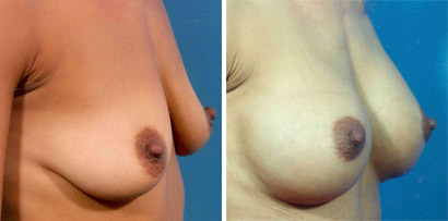 breast lift with implant
